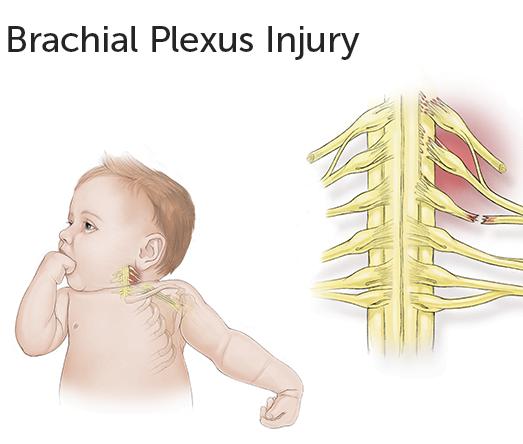 Brakiyal Pleksus Rehabilitasyonu
