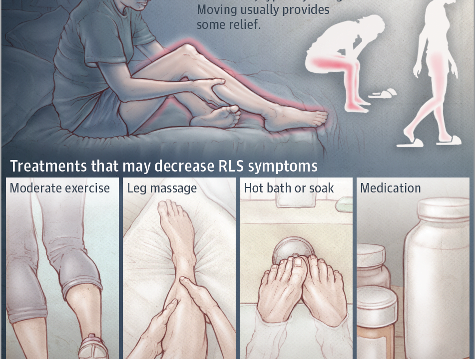 Huzursuz Bacak Sendromu